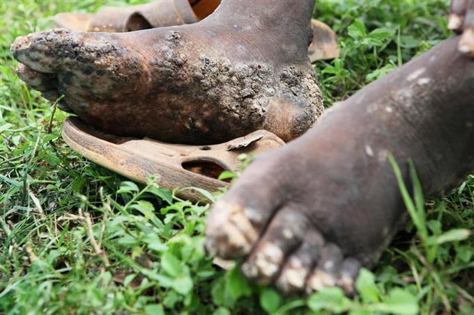 スナノミが寄生し、皮膚炎を起こした人の足(日本リザルツ提供)