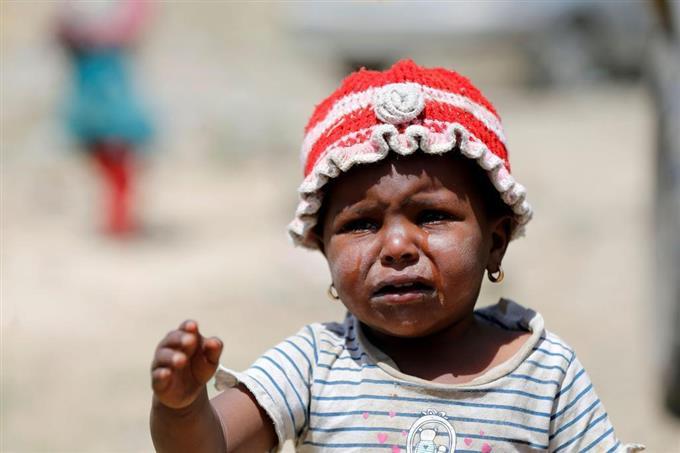 イエメン幼児、栄養失調増 「世界最悪の人道危機」 - サッと見ニュース ...