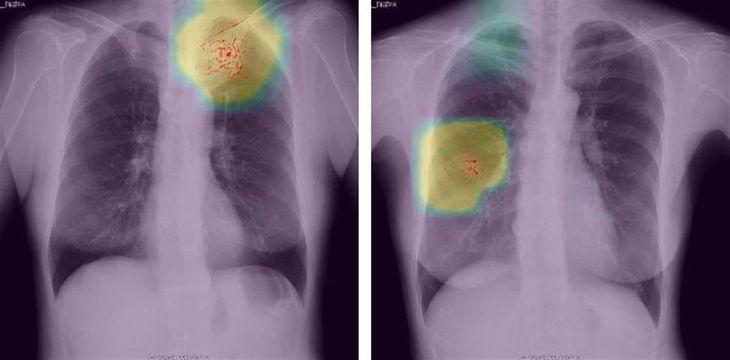 プリファードネットワークスが開発した胸部X線画像診断補助ツール。画像から患部をAIが判定し、色を付けて知らせる(同社提供)