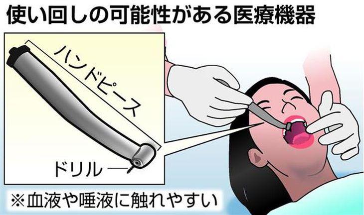【ニュースの深層】歯医者さんの半数 医療機器使い回し 感染リスク否定できず 手袋も患者ごとには交換せず
